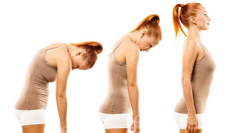 Kifoza. Si ndikon kiropraktika?