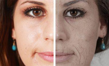 Rrudhat, gropat e syve, fytyra e zbehtë: Edhe më keq do të dukeni pas 10 vjetësh, nëse kjo është arsyeja! (Video)