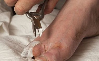 I moshuari pret gishtat e këmbës me pincë, i befason edhe mjekët! (Foto/Video,+16)