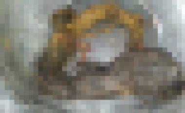 Mjekët i nxjerrin nga barku një lëmsh të madh flokësh (Foto)