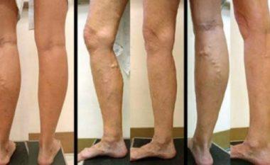 Nëse keni problem me vena të zgjeruara, më 21, 22 dhe 23 janar në Anaderm bëhet shërimi i tyre