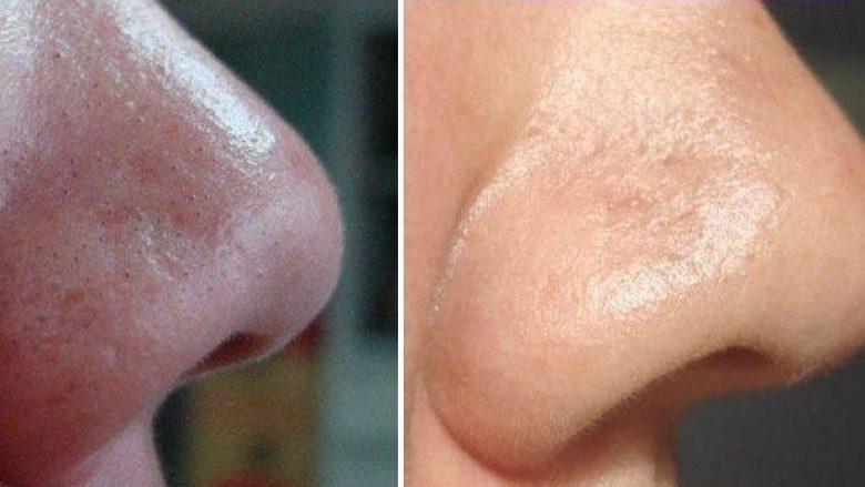 Metodë natyrale me vezë për heqjen e pikave të zeza në hundë