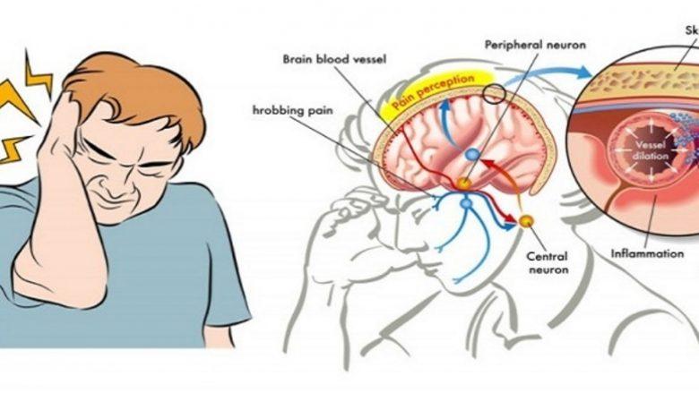 Si t'i ndalni dhimbjet e migrenës vetëm me kripë?