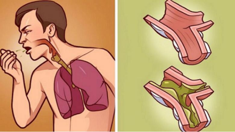 Kur mushkëritë t'iu jenë mbushur me mukozë, kjo metodë natyrale do t'ju ndihmojë