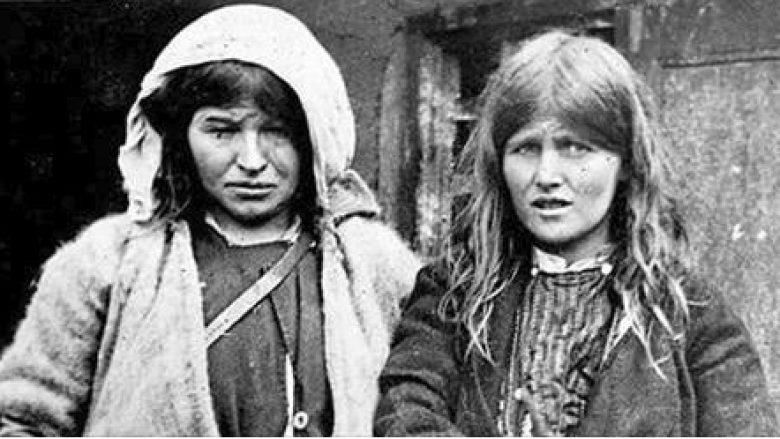 Historia prekëse e këtyre dy motrave shqiptare që 'tronditi' botën (Foto)