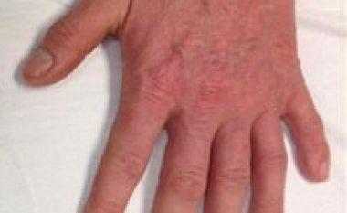 Duart e veçanta me nga një gisht shtesë (Foto)