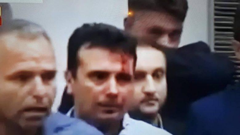 Këto janë deputetët e lënduar në Kuvendin e Maqedonisë