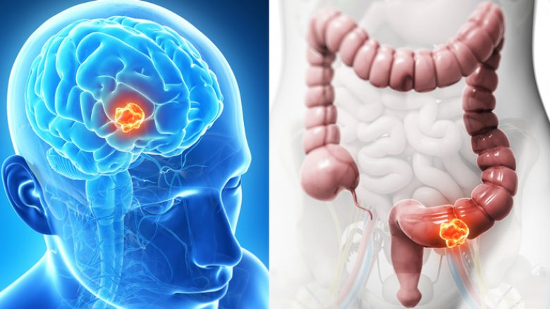 Vrani qelizat kanceroze duke e shmangur këtë ushqim që e konsumoni ÇDO DITË