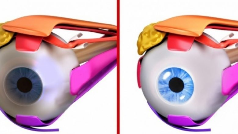 Bëni këto ushtrime të syve për ta përmirësuar shikimin