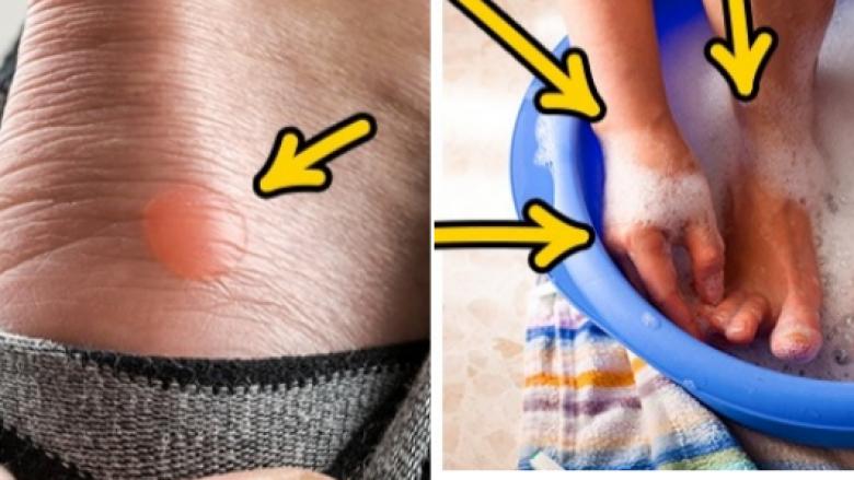 Si t'i shëroni fluskat e këmbës brenda nate