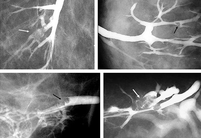 RadiologÃŁa. 10.1016/j.rx.2011.06.005
