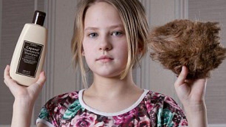 Mjeku ia rekomandon një shampo, flokët iu bënë si shtëllunga leshi (Foto)