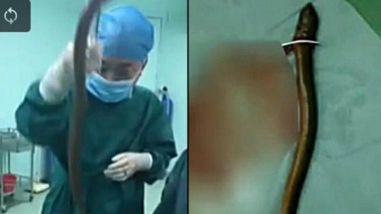 Mjekët i nxjerrin nga anusi ngjalën gati gjysma metri të gjatë – arsyeja pse e kishte futur brenda është bizare (Video)