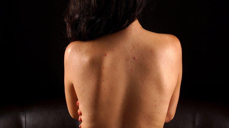 Dermatologia e Kendall Jennerit zbulon: Ja se si njëherë e përgjithmonë t'i eliminoni aknet nga shpina!