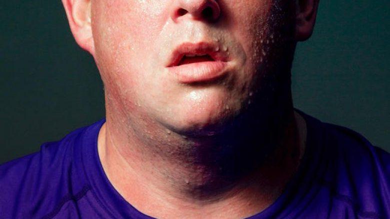 40 për qind e kancereve ndërlidhen me mbipeshën