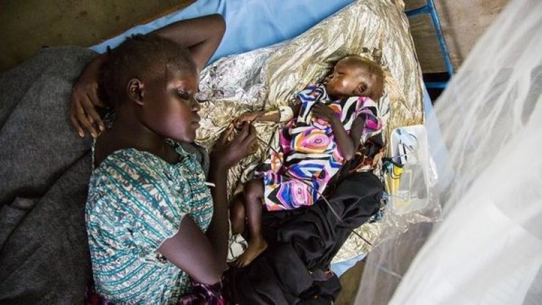 UNICEF: 400 mijë fëmijë rrezikojnë jetën nga kequshqyerja