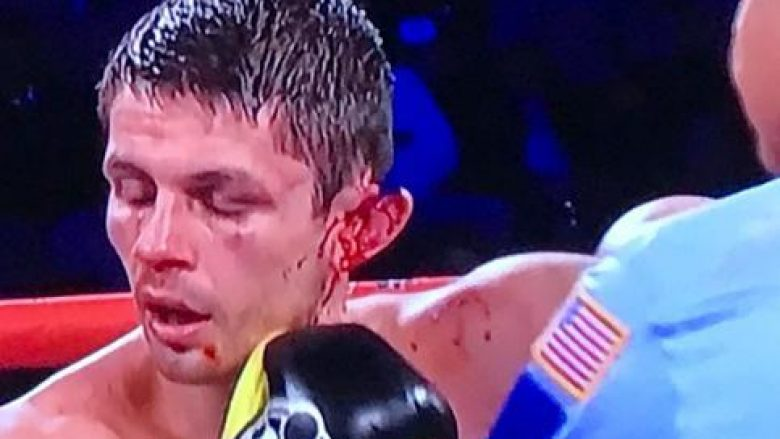 Dueli i mbrëmshëm na kujtoi përballjen Tyson-Holyfield, boksierit Smeth i shqyhet veshi (Video)
