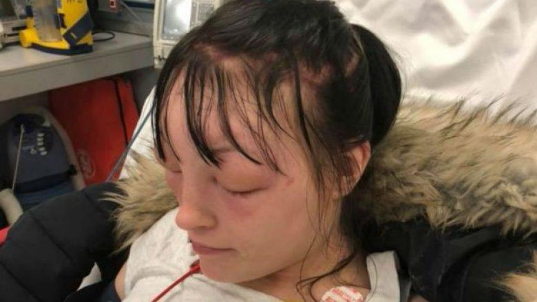 E përdori ngjyrën e flokëve në shtëpi, gruaja tregon pasojat – thotë se ishte shtruar tri herë në spital! (Foto)