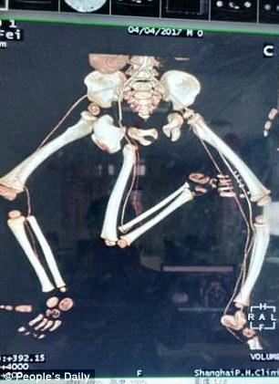 Fëmija që lindi me tri këmbë, i nënshtrohet operimit dhjetë orësh për ta hequr gjymtyrën e tepërt (Foto)