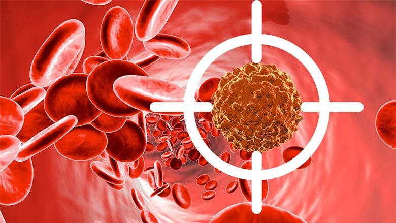 Tri simptomat paralajmëruese të leukemisë që nuk duhet t'i injoroni kurrë