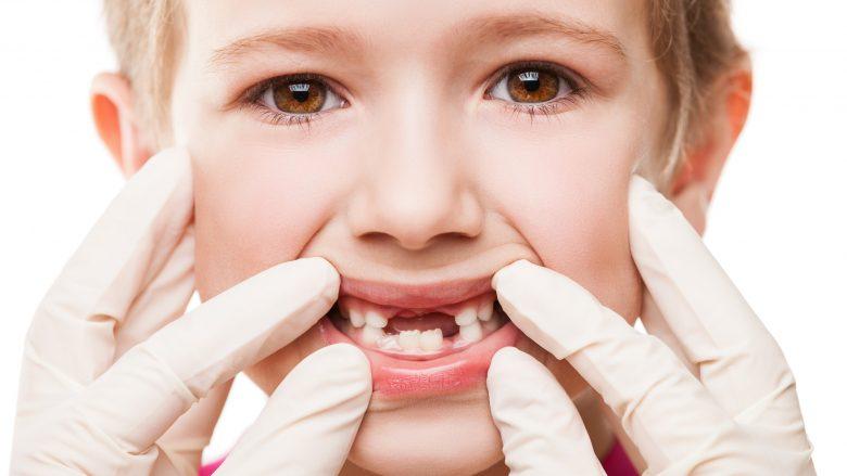 Nxjerrja e dhëmbëve të qumështit nuk shkakton dhimbje te fëmijët (Video + Foto )