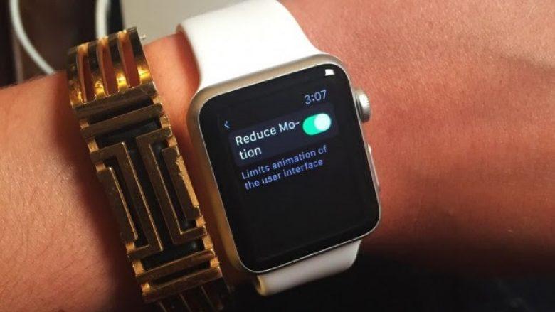 Apple Watch shpëton jetën e një 25-vjeçarje