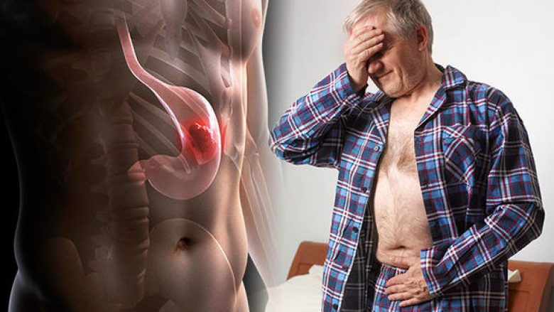 Simptomat e kancerit të lukthit