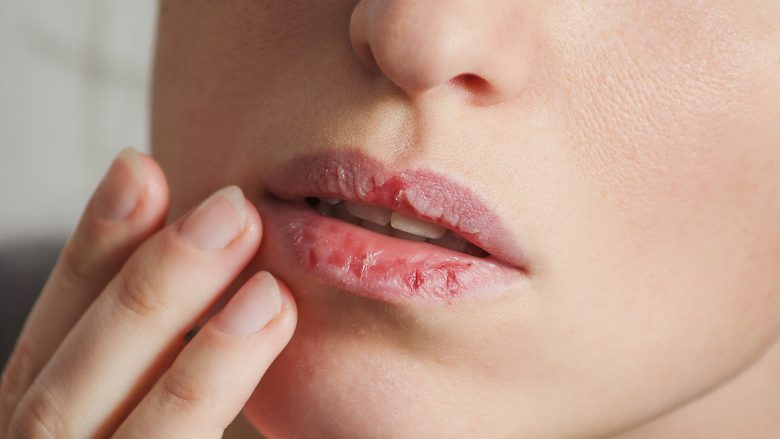 Dermatillomania skin picking. Woman has bad habit to picks her lips. Harmful addiction based on anxiety stress and dry lips. Excoriation disorder. Sick cracked damaged tissue.