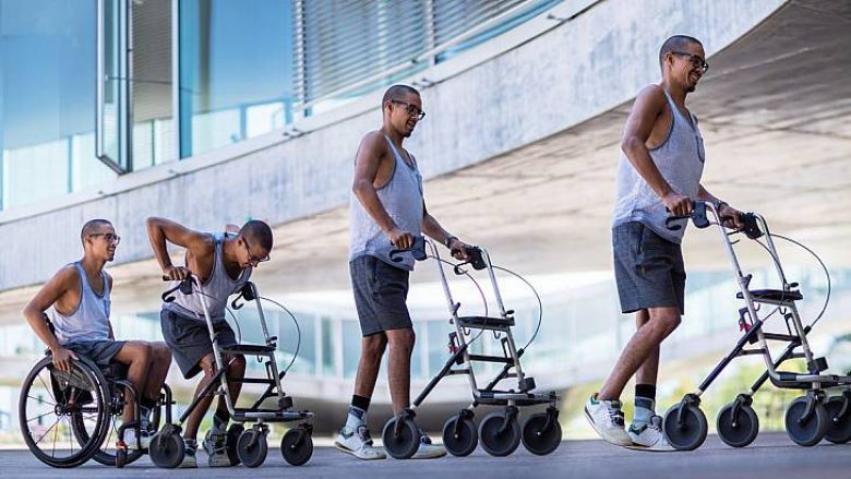Teknologjia bën tre të paralizuar të çohen në këmbë