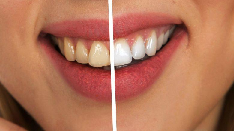 Mund ta bëni vetë: Ky lëng eliminon kariesin nga dhëmbët në mënyrë shumë efikase