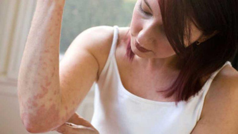 Problemet psikike dhe psoriaza: Çfarë do të thotë kur sëmundja shfaqet në kokë dhe çfarë të bëni kur e keni në dorë?