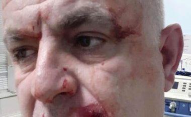 Dega e PDK-së në Ferizaj: Aktivistët e Vetëvendosjes kanë sulmuar veprimtarin e PDK-së, Jakup Sabedinin