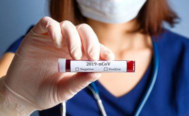 Edhe tetë raste të reja me coronavirus në Kosovë, shkon në 79 numri i të infektuarve
