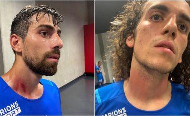 Lojtarët e Marseilles tregojnë lëndimet që pësuan nga tifozët e Nices